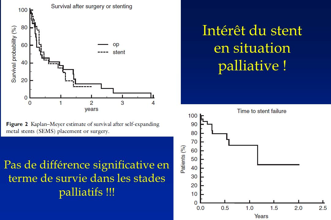 Intérêt du stent en situation palliative !