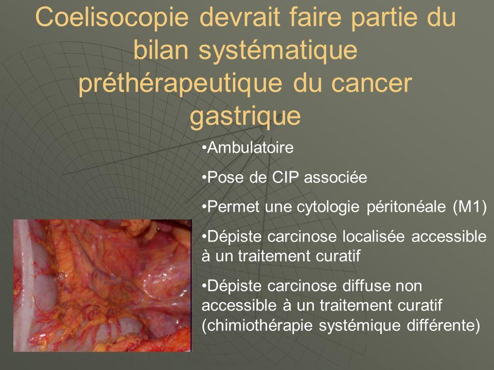 Coelisocopie devrait faire partie du bilan systématique préthérapeutique du cancer gastrique