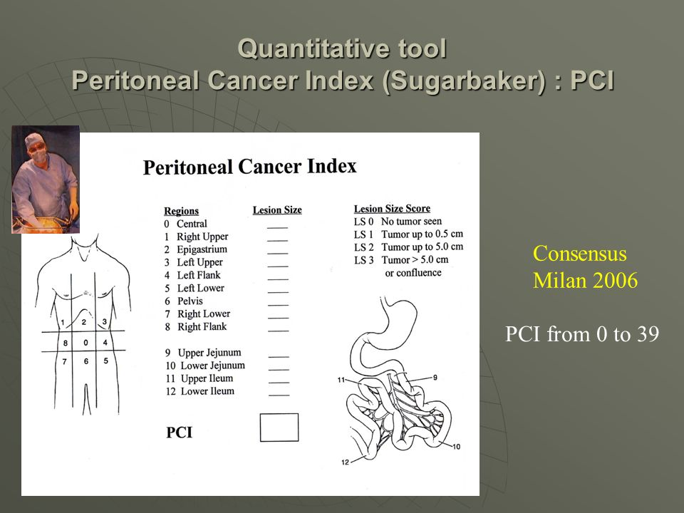 Quantitative tool Peritoneal Cancer Index (Sugarbaker) : PCI