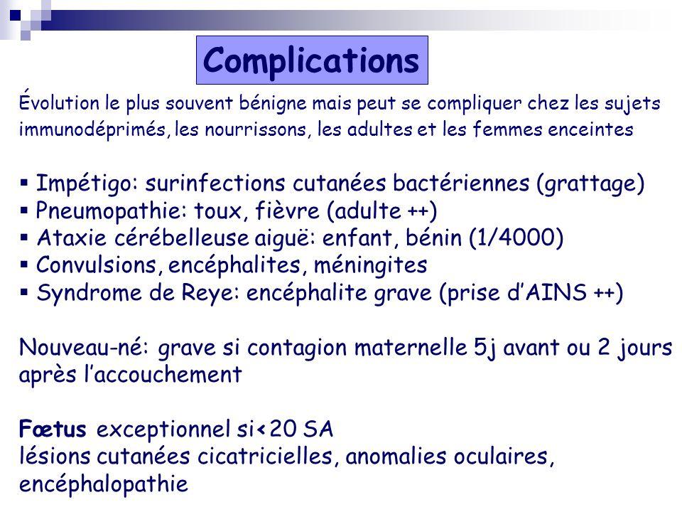 Complications Impétigo: surinfections cutanées bactériennes (grattage)