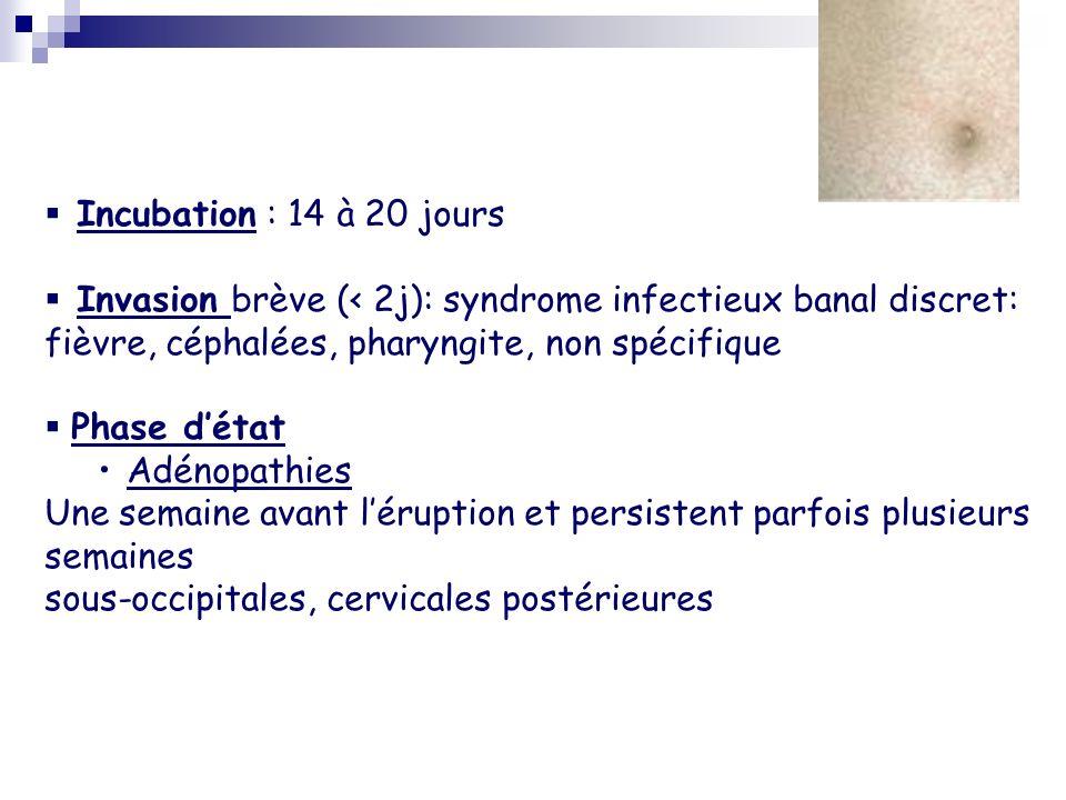 Incubation : 14 à 20 jours Invasion brève (< 2j): syndrome infectieux banal discret: fièvre, céphalées, pharyngite, non spécifique.