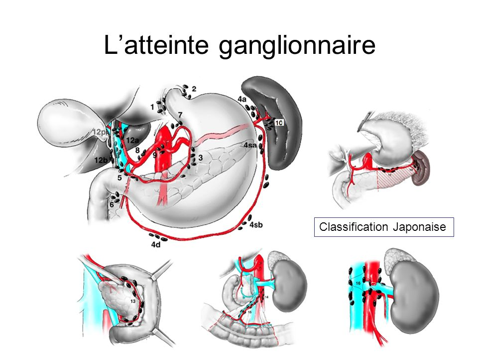 L'atteinte ganglionnaire