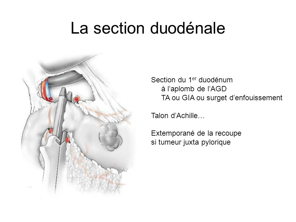 La section duodénale Section du 1er duodénum à l'aplomb de l'AGD