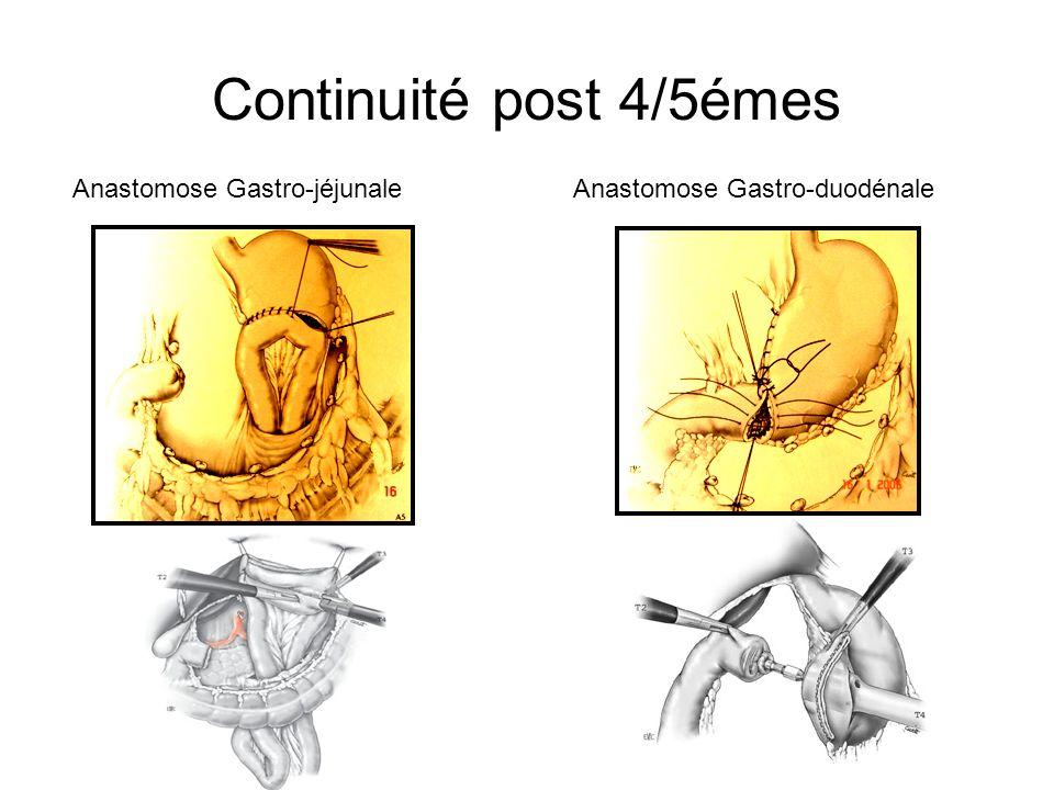 Continuité post 4/5émes Anastomose Gastro-jéjunale