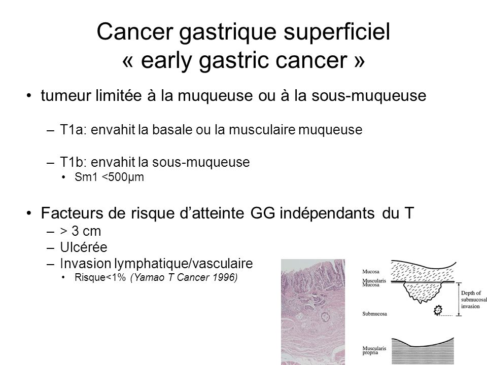 Cancer gastrique superficiel « early gastric cancer »
