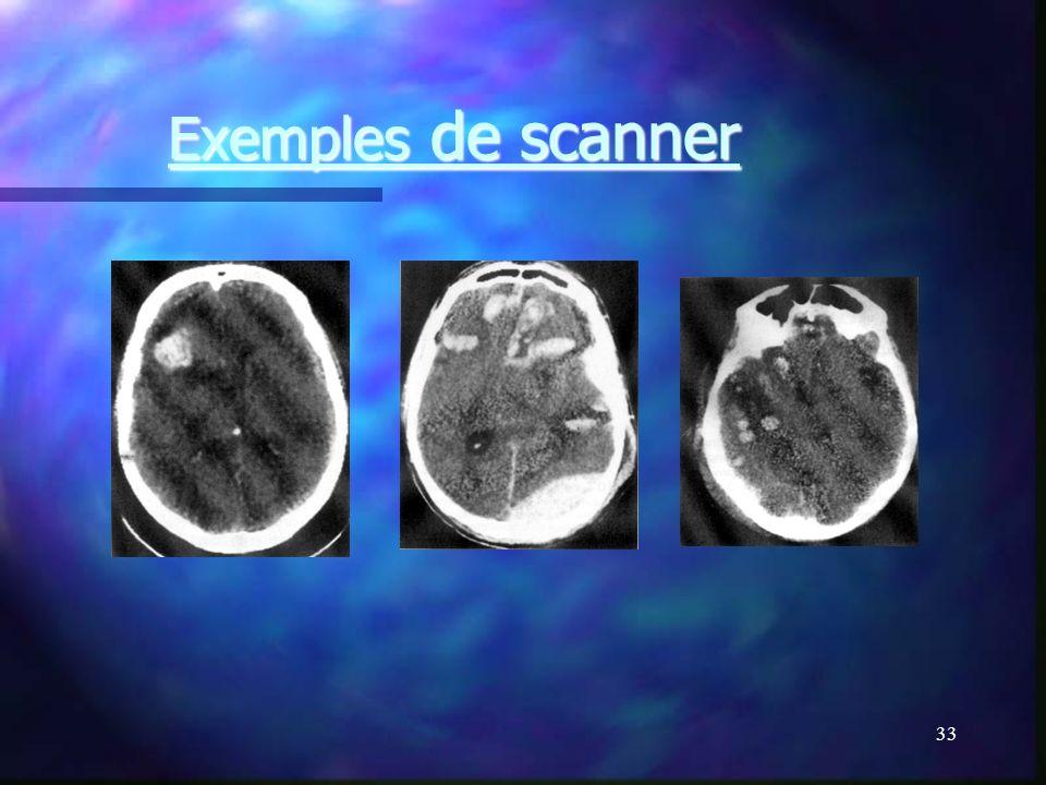 Exemples de scanner