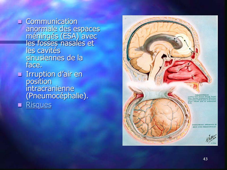 Communication anormale des espaces méningés (ESA) avec les fosses nasales et les cavités sinusiennes de la face.