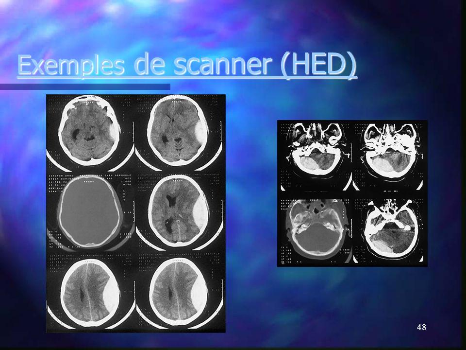 Exemples de scanner (HED)