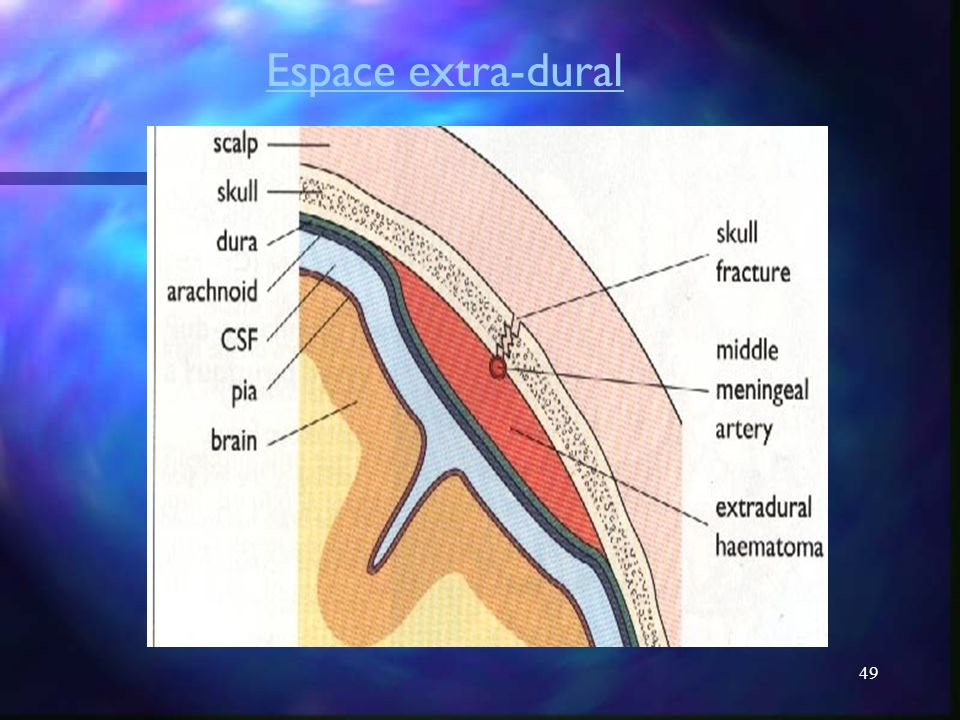 Espace extra-dural