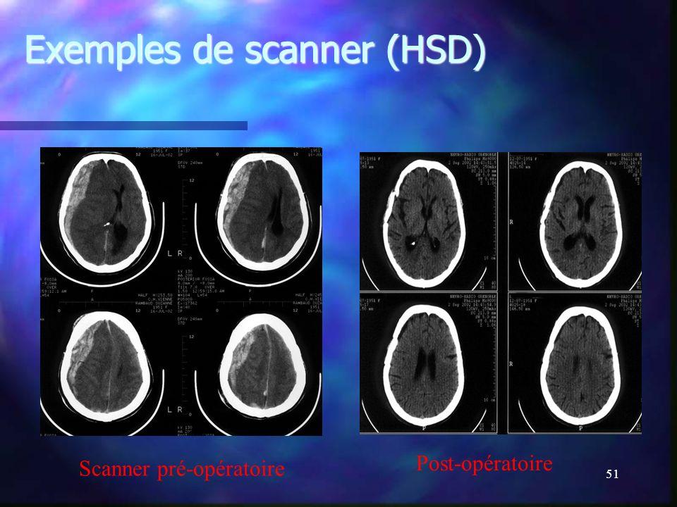 Exemples de scanner (HSD)