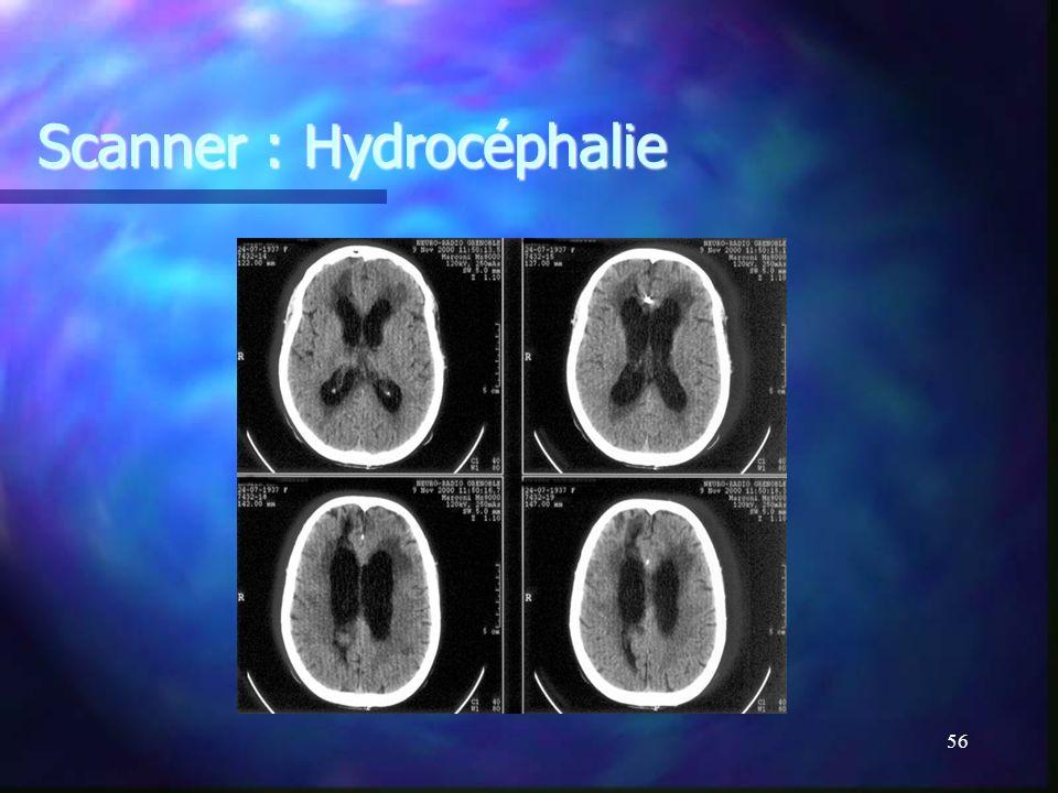 Scanner : Hydrocéphalie