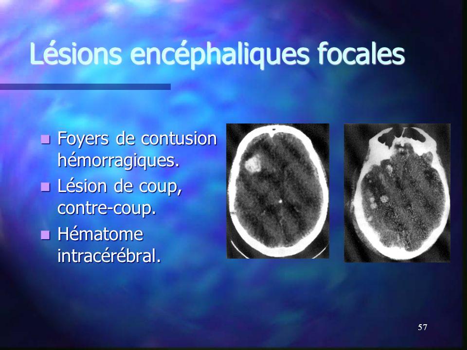 Lésions encéphaliques focales