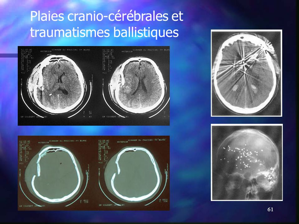 Plaies cranio-cérébrales et traumatismes ballistiques