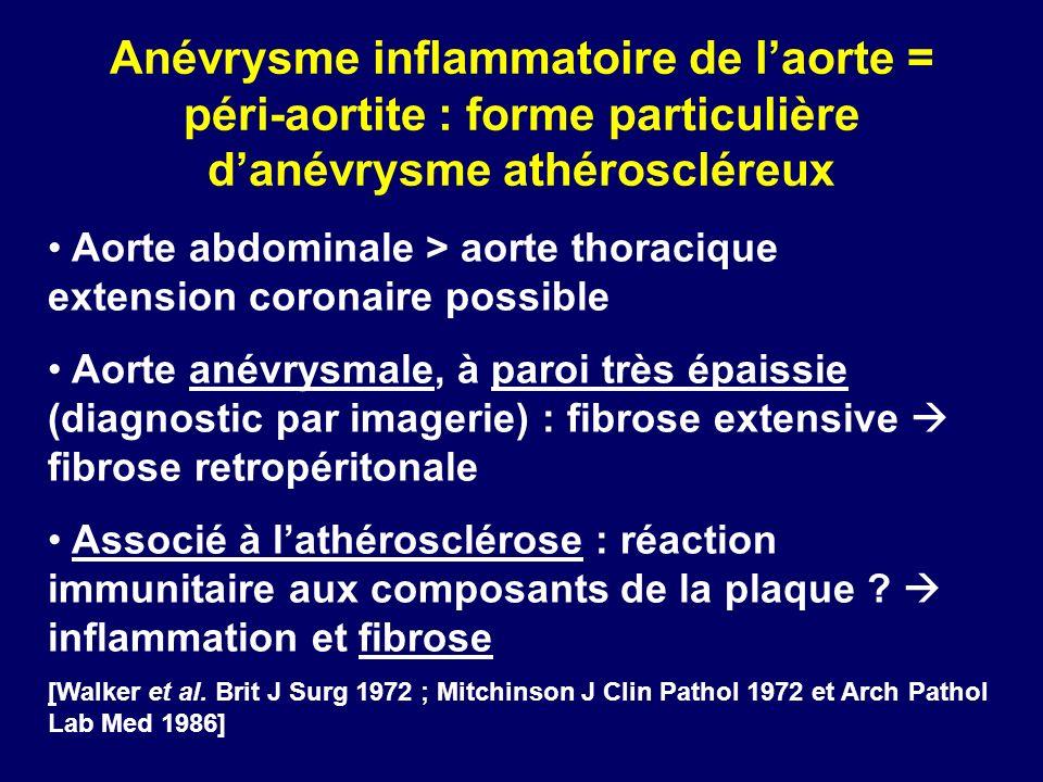 Anévrysme inflammatoire de l'aorte = péri-aortite : forme particulière d'anévrysme athéroscléreux