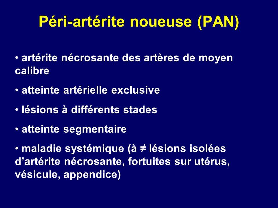 Péri-artérite noueuse (PAN)