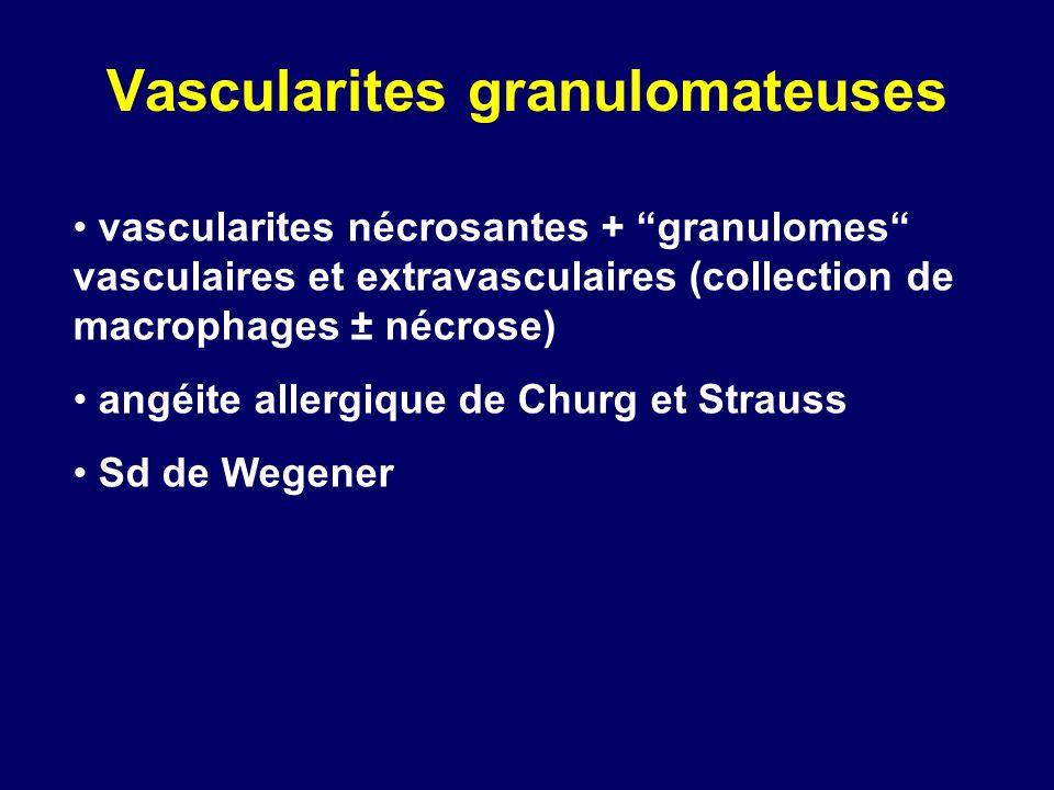 Vascularites granulomateuses