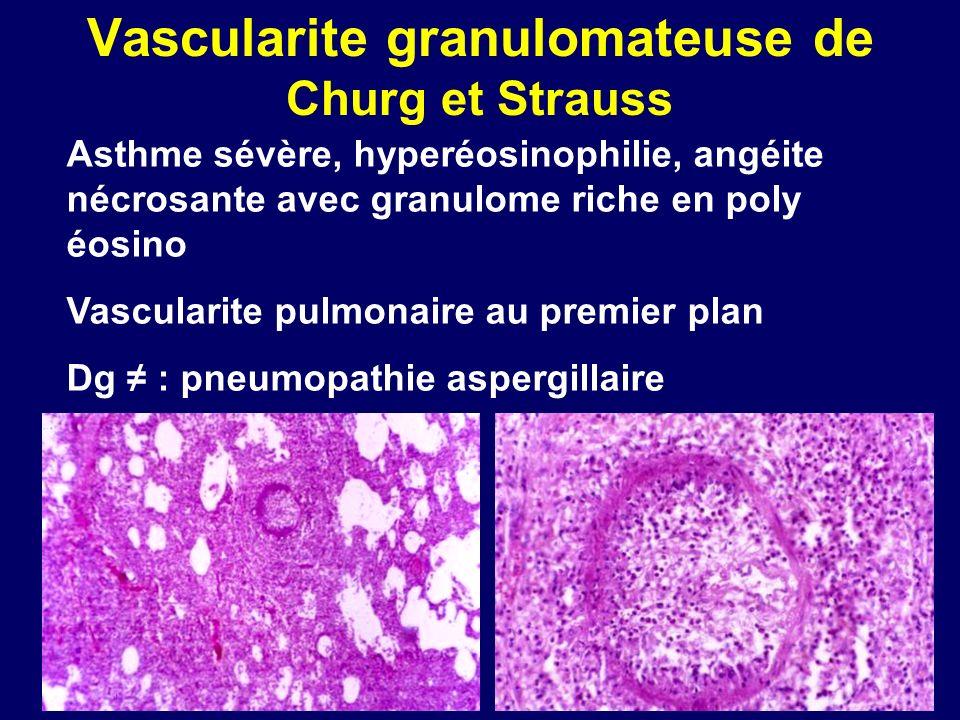 Vascularite granulomateuse de Churg et Strauss