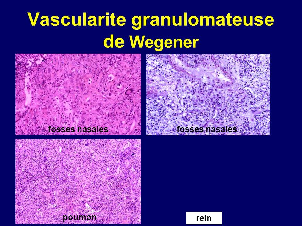 Vascularite granulomateuse de Wegener