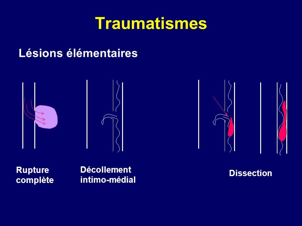 Traumatismes Lésions élémentaires Rupture complète