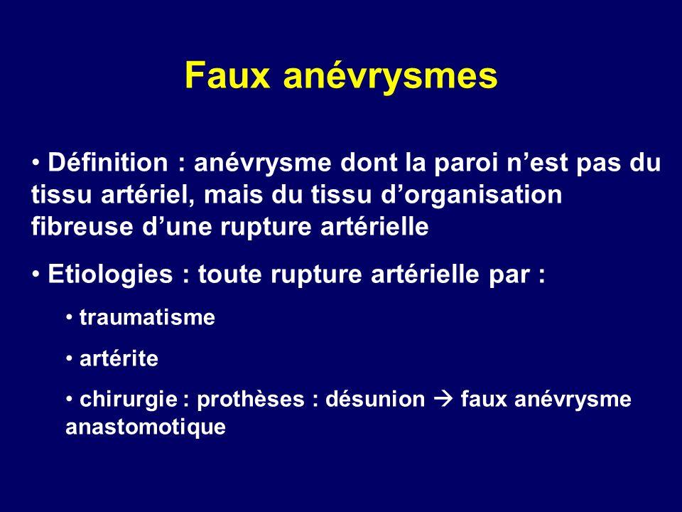 Faux anévrysmes Définition : anévrysme dont la paroi n'est pas du tissu artériel, mais du tissu d'organisation fibreuse d'une rupture artérielle.