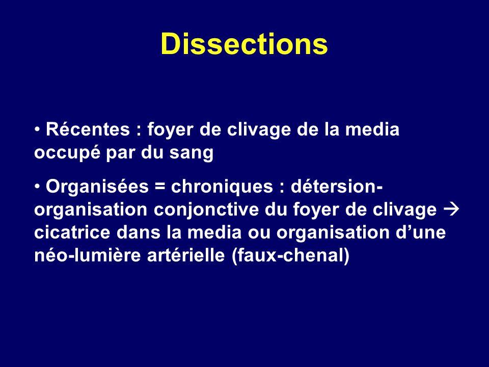 Dissections Récentes : foyer de clivage de la media occupé par du sang