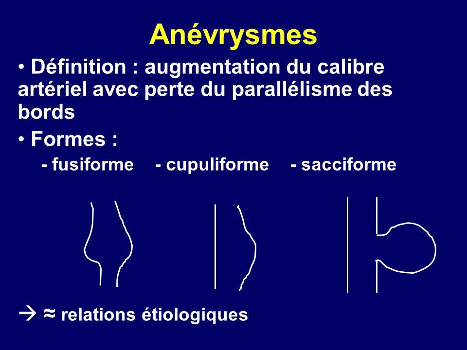 Anévrysmes Définition : augmentation du calibre artériel avec perte du parallélisme des bords. Formes :