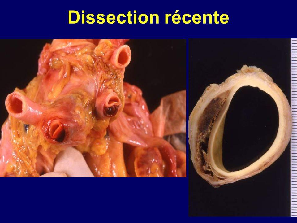 Dissection récente