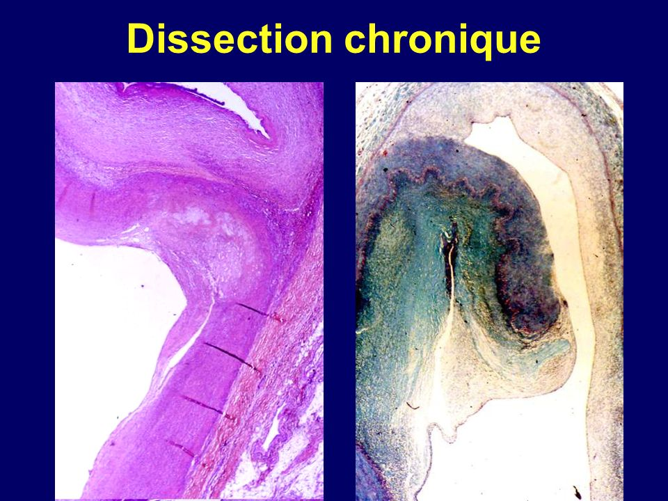 Dissection chronique