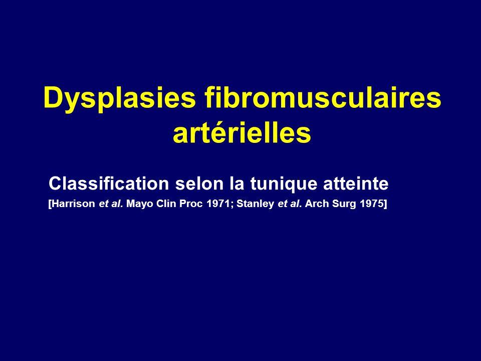 Dysplasies fibromusculaires artérielles