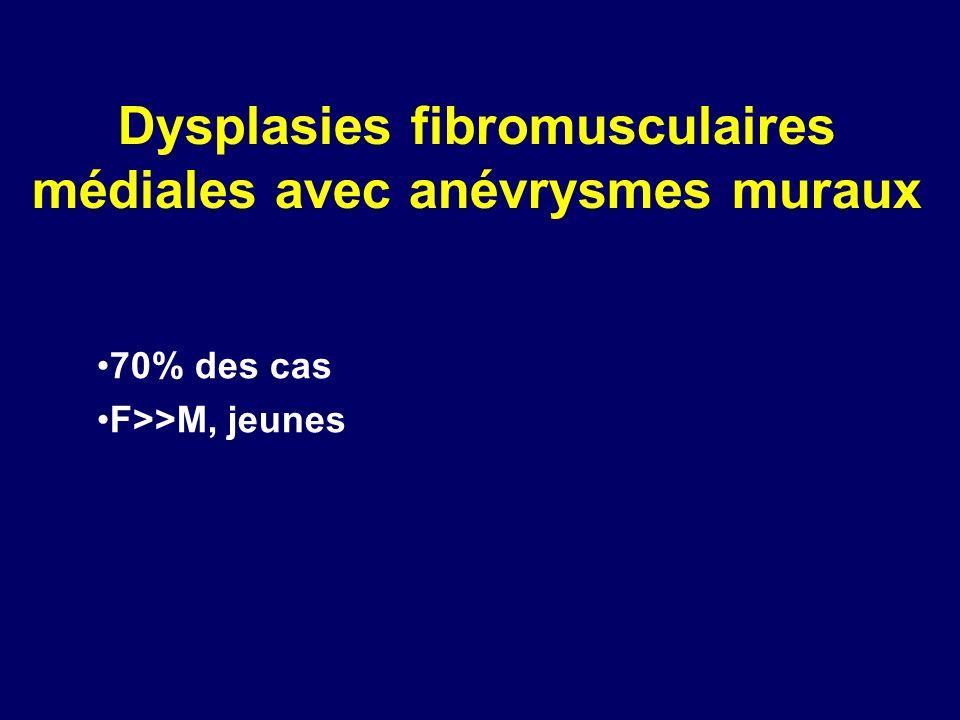 Dysplasies fibromusculaires médiales avec anévrysmes muraux