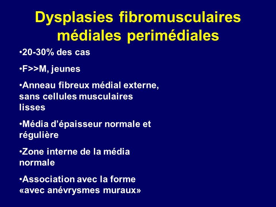 Dysplasies fibromusculaires médiales perimédiales