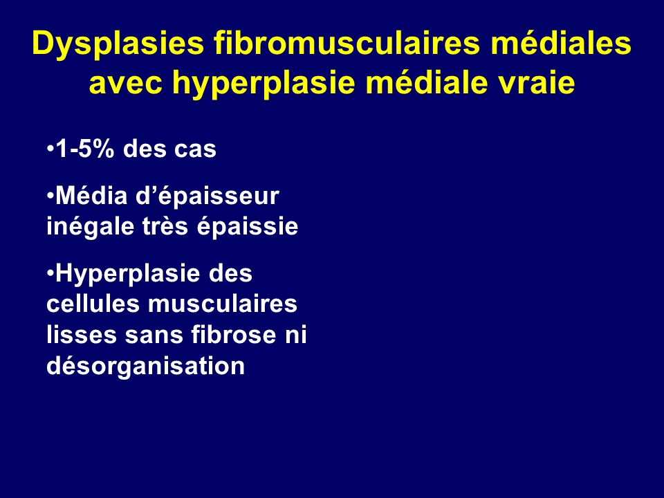 Dysplasies fibromusculaires médiales avec hyperplasie médiale vraie