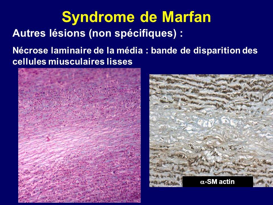 Syndrome de Marfan Autres lésions (non spécifiques) :