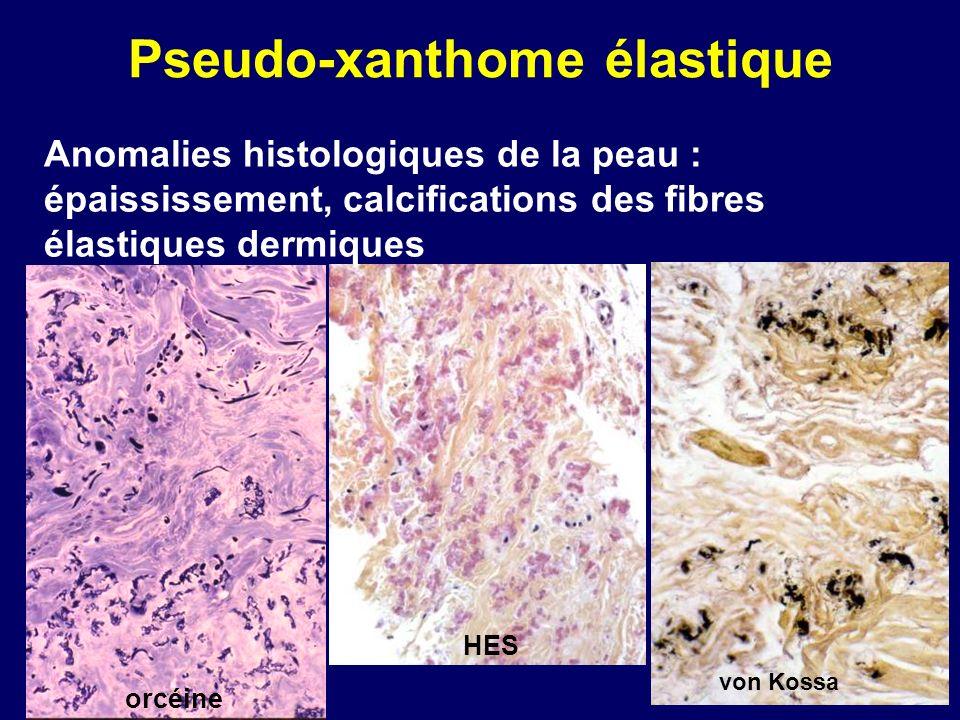 Pseudo-xanthome élastique