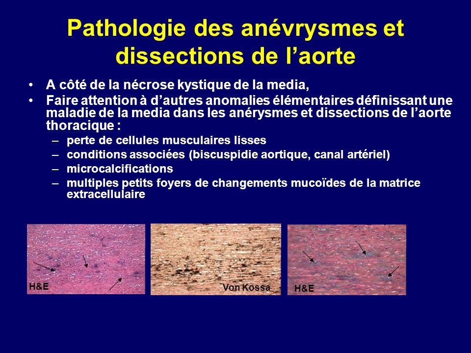 Pathologie des anévrysmes et dissections de l'aorte