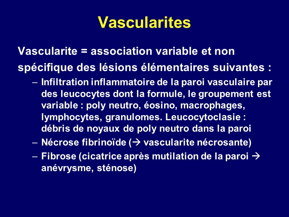 Vascularites Vascularite = association variable et non