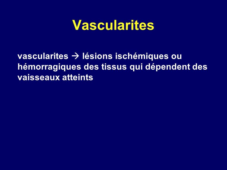 Vascularites vascularites  lésions ischémiques ou hémorragiques des tissus qui dépendent des vaisseaux atteints.