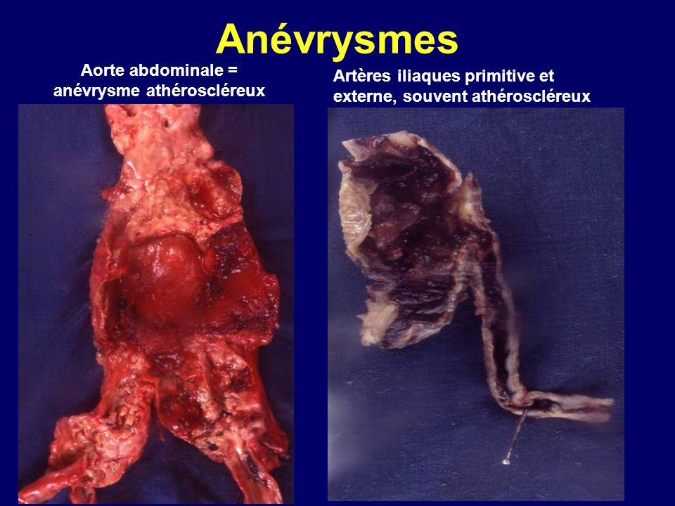 Aorte abdominale = anévrysme athéroscléreux