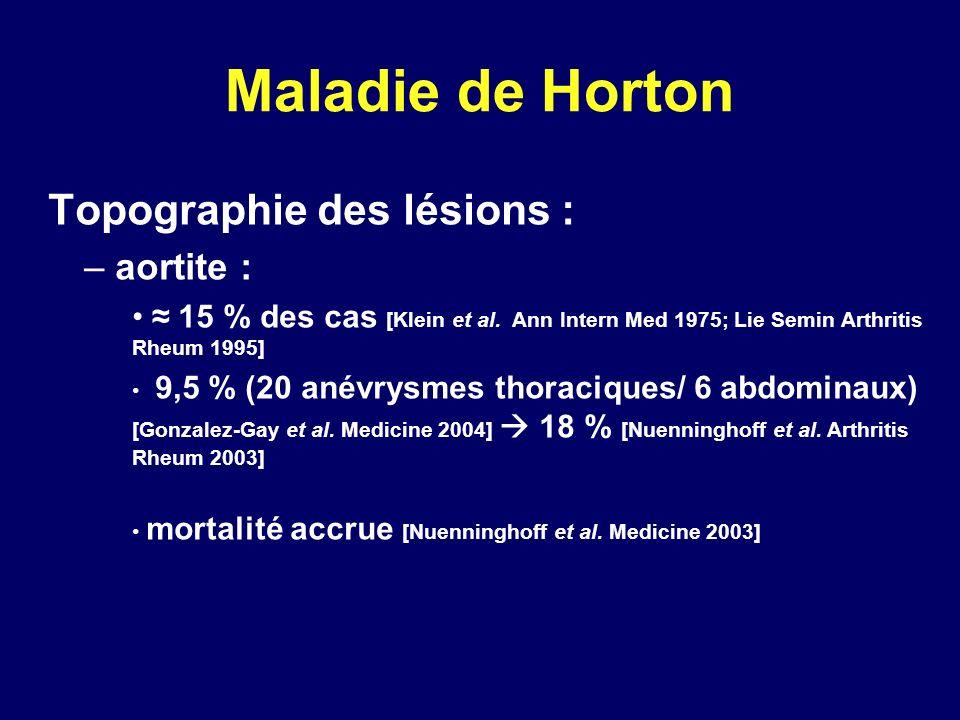 Maladie de Horton Topographie des lésions : aortite :
