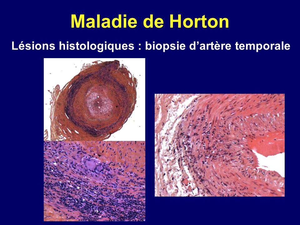 Lésions histologiques : biopsie d'artère temporale