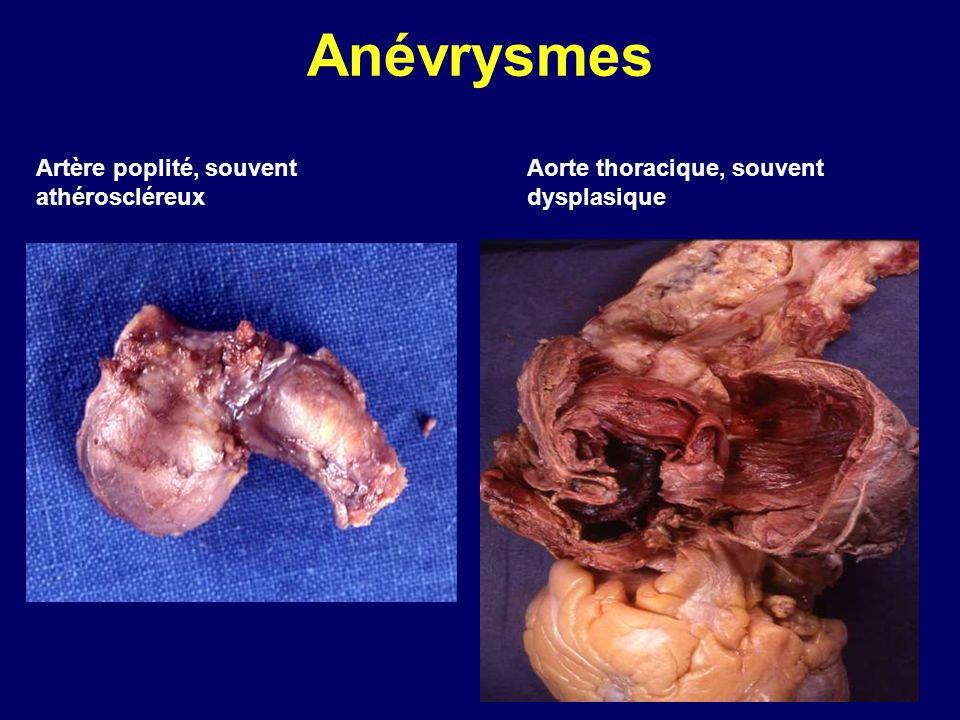 Anévrysmes Artère poplité, souvent athéroscléreux