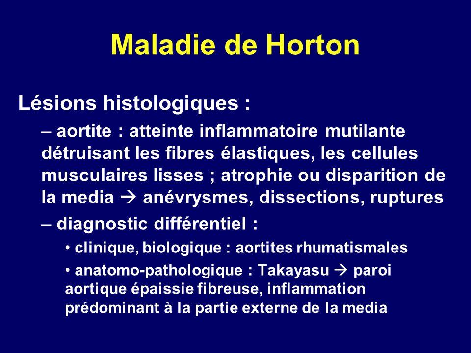 Maladie de Horton Lésions histologiques :
