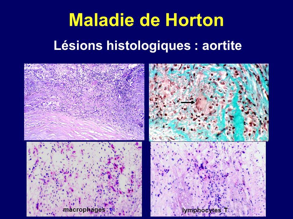 Lésions histologiques : aortite
