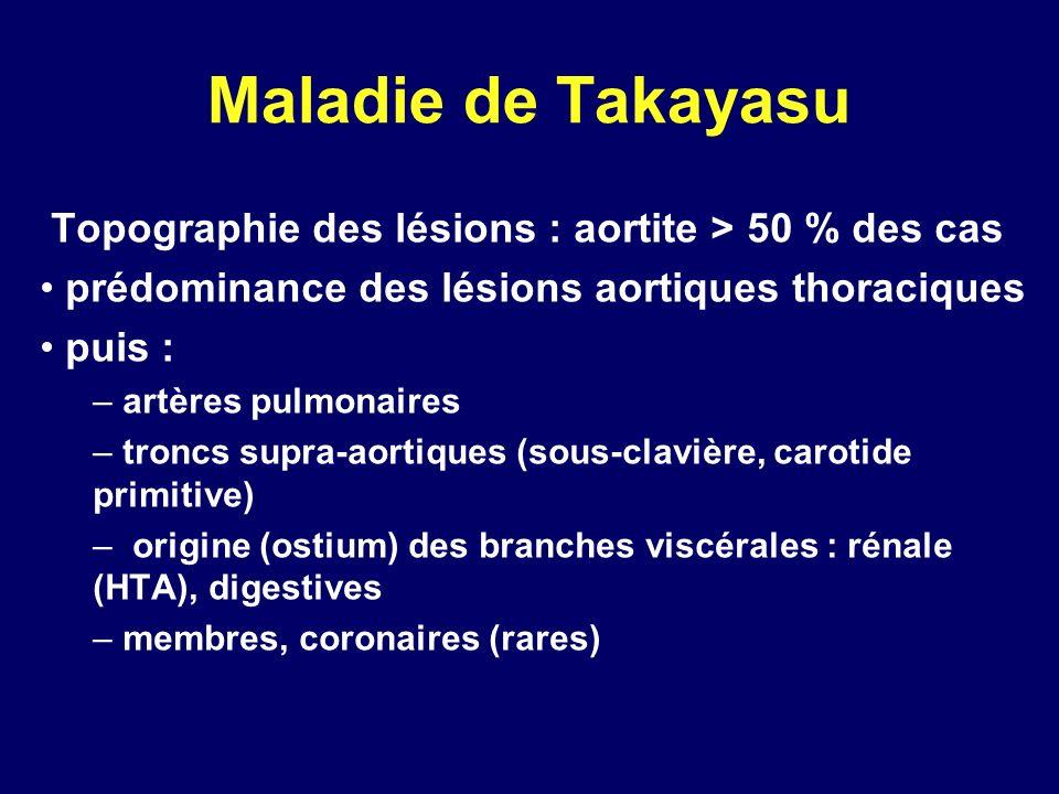 Maladie de Takayasu Topographie des lésions : aortite > 50 % des cas. prédominance des lésions aortiques thoraciques.