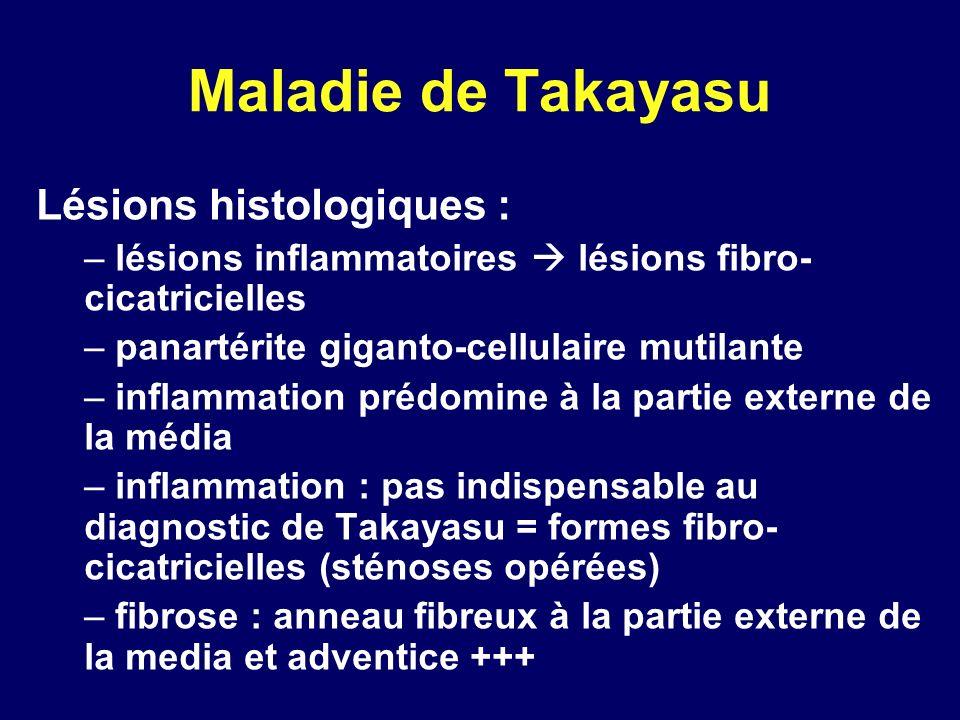 Maladie de Takayasu Lésions histologiques :