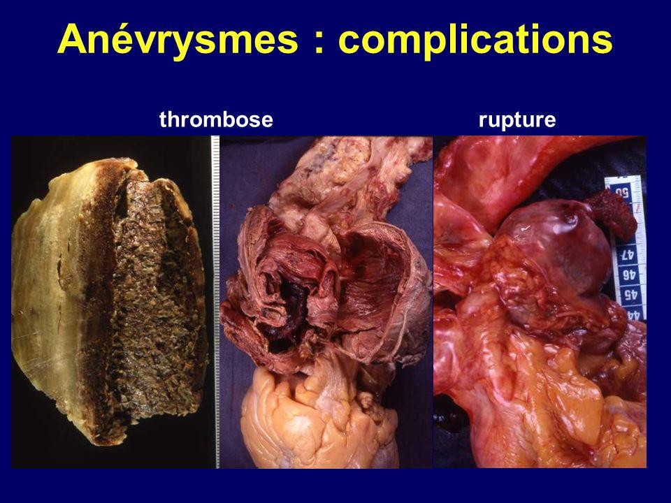 Anévrysmes : complications