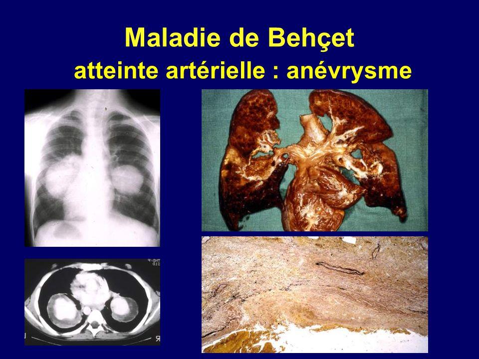 Maladie de Behçet atteinte artérielle : anévrysme