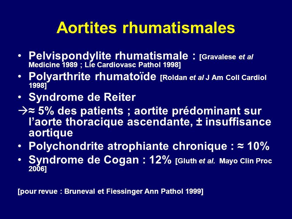Aortites rhumatismales