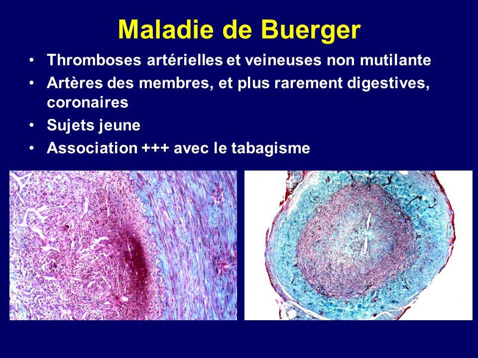 Maladie de Buerger Thromboses artérielles et veineuses non mutilante
