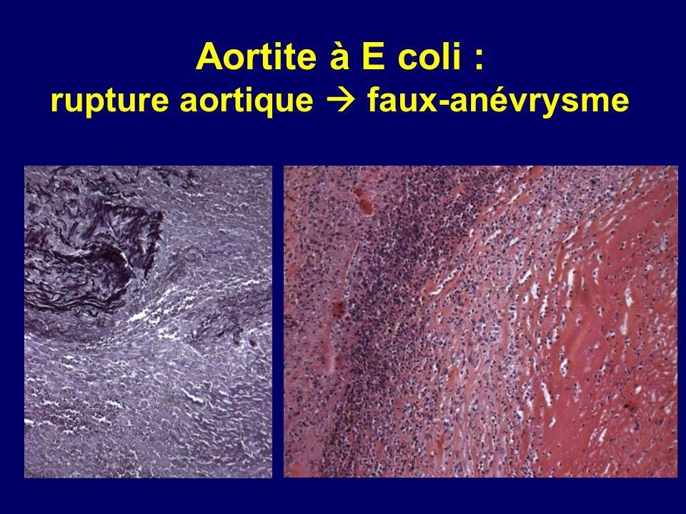 rupture aortique  faux-anévrysme